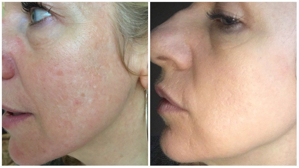 results of dermapen micro-needling